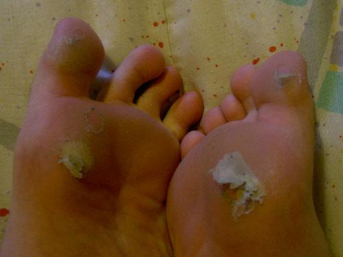 Las uñas enfermas en los pies el tratamiento